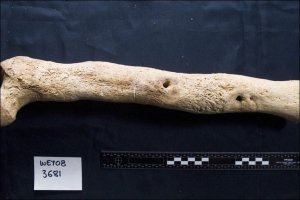 Leg bone showing signs of serious infection from the Ridgeway burial
